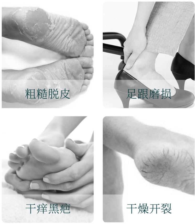 Увлажняющий стик для ног с китайскими травами против трещин и мозолей Siayzu Raioceu
