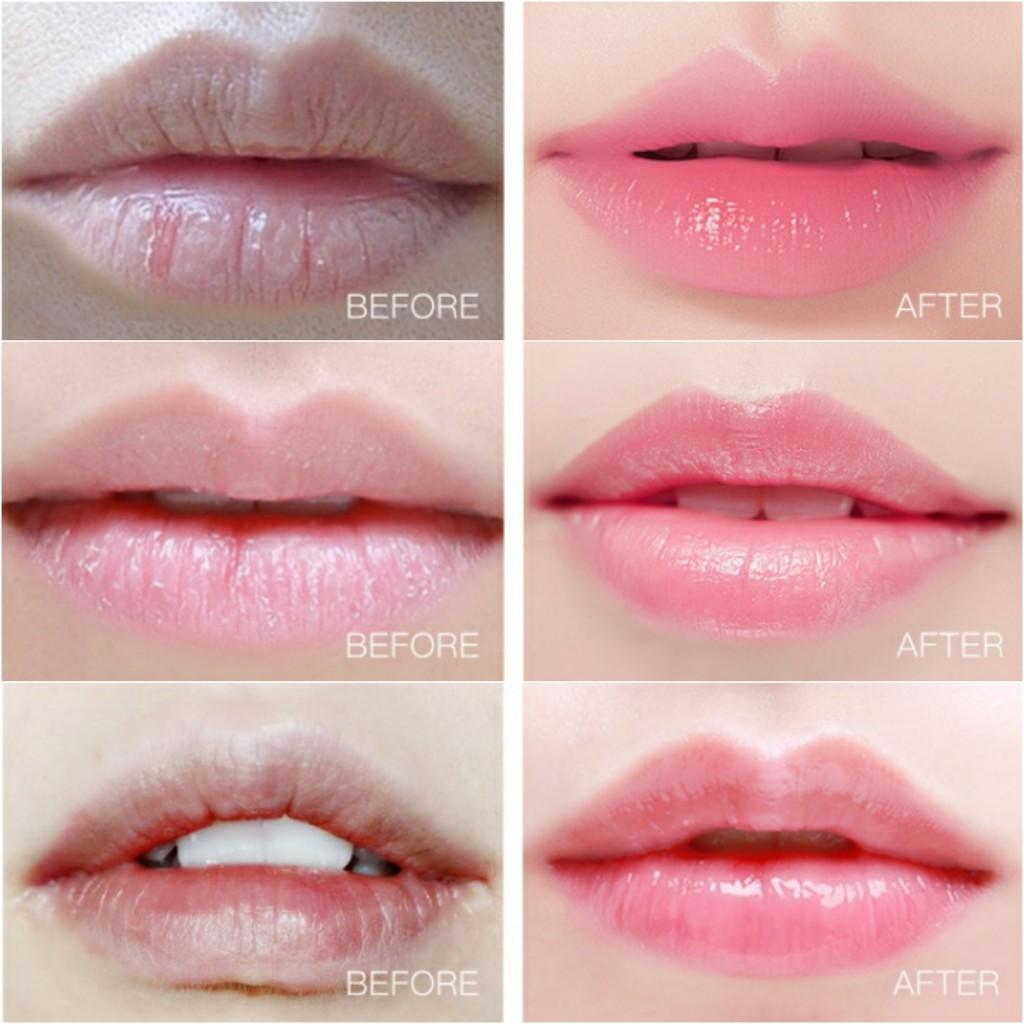 Гидрогелевые патчи для губ VENZEN LIP MASK DOUBLE MOISTURIZING, 20 шт.